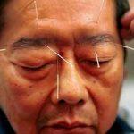 العلاج بالإبر الصينية حقيقة أم خرافة؟