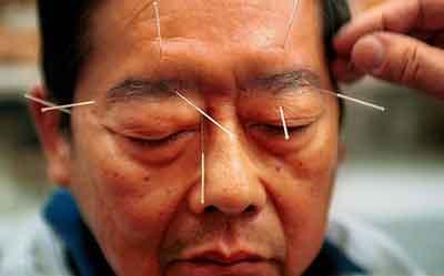 الإبر الصينية