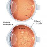 العين وأمراضها