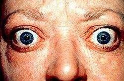 صورة توضح جحوظ العينين، وهو من الأعراض الرئيسية للدراق الجحوظي.